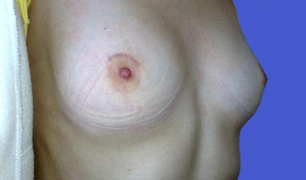 шрам после фиброаденомы