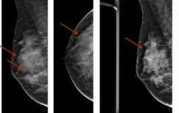фиброзно-кистозная мастопатия снимок