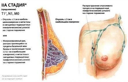 Упражнения для увеличения груди питание