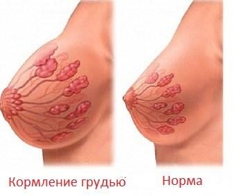 схема молочной железы при ГВ