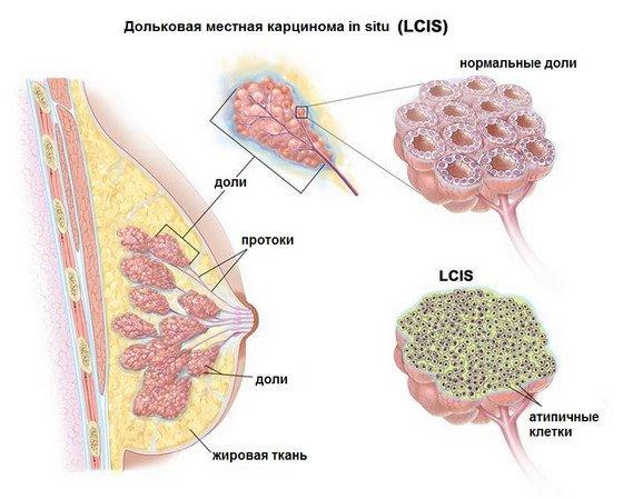 дольковая карцинома рак груди