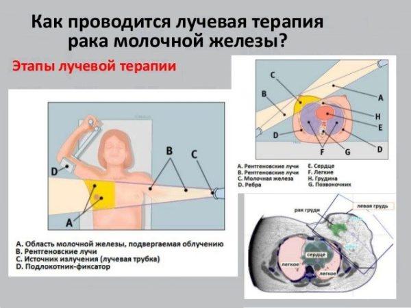 лучевая терапия рмж