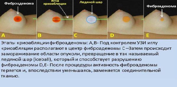 Удаление фиброаденомы молочной железы, послеоперационный период