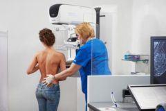 рентген молочных желез