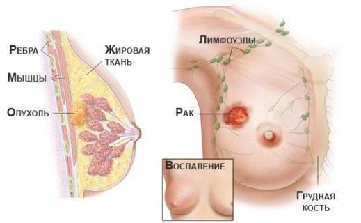 рак молочной железы схема
