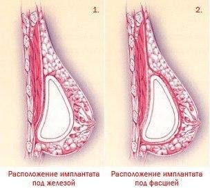 импланты в молочных железах