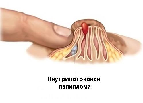 папиллома в молочной железе