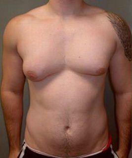 Сустанон для лечения после мастэктомии джин джоу стероиды