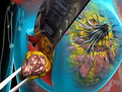 одним из последствий хирургического лечения груди может стать масталгия
