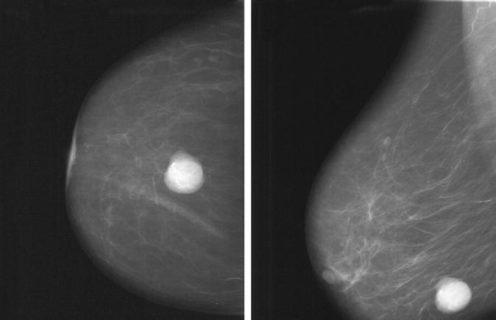 маммограмма солитарной кисты молочной железы