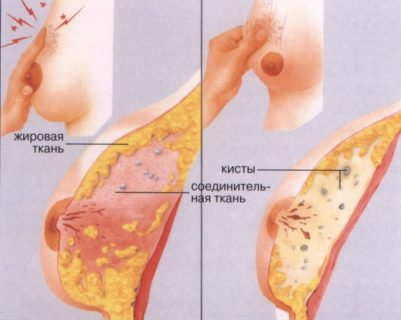 фиброзно-кистозная мастопатия встречается наиболее часто