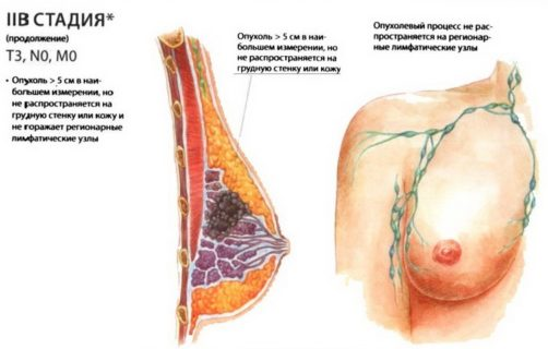 2б стадия рака молочной железы