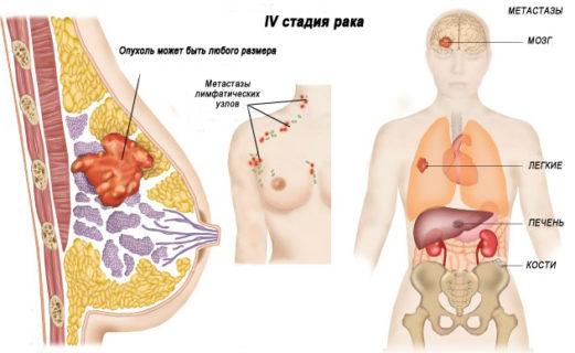 4 стадия рака груди