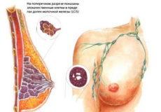 0 стадия рака молочной железы
