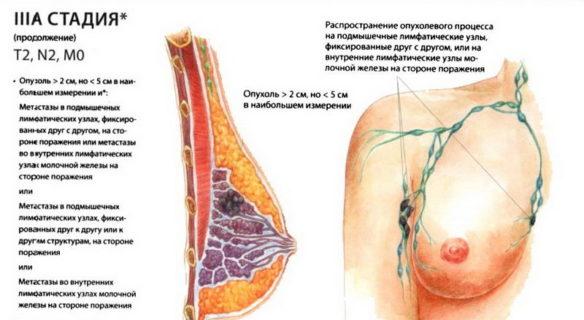 3а стадия рака молочной железы