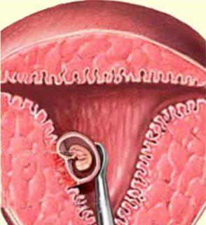 искусственное прерывание беременности повышает риск образования рака груди