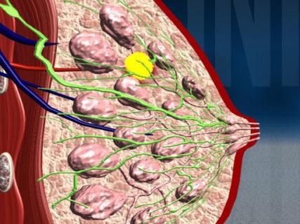 Мастопатия Щитовидная Железа Лечение