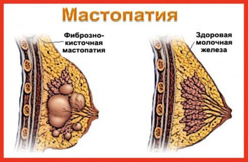 Фиброзно-кистозная мастопатия: что это, страшно или нет