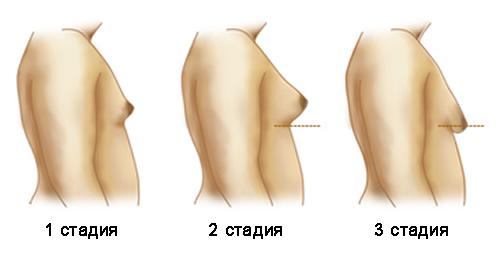Выявление гинекомастии