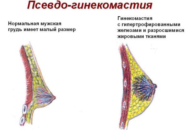 Гинекомастия и операция