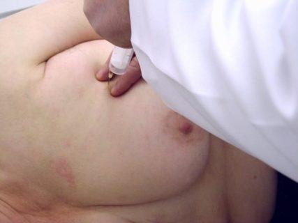 прокол женской груди иглами