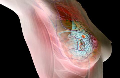 Наличие злокачественного новообразования в груди