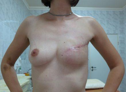 результат мастектомии