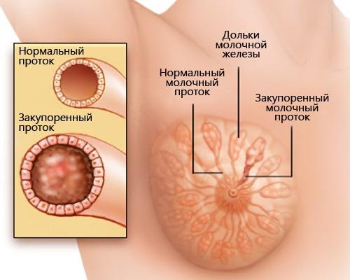 После лактостаза осталось уплотнение - Медицина, симптомы, лечение, признаки, лекарства