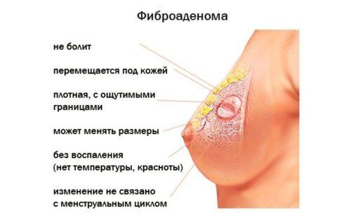 симптомы фиброаденомы