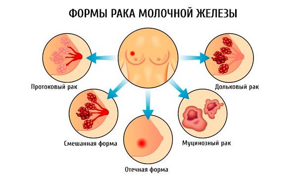тип рака молочной железы