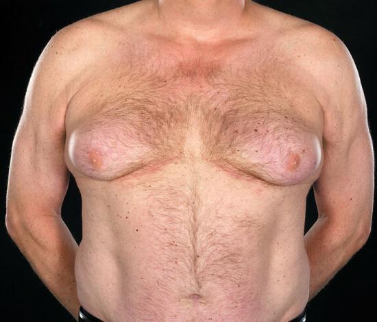 гинекомастия у пожилых мужчин