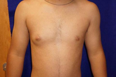 Гинекомастия на одну грудь