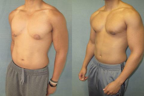инекомастия на две груди