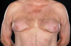 гинекомастия после 45 лет