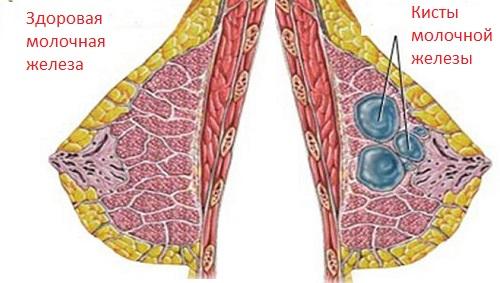 Мантра для лечения суставов