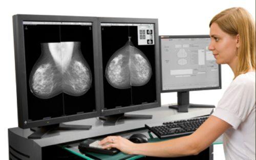 Компьютерная маммография