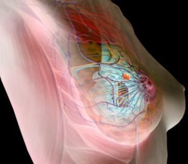 мастопатия может быть причиной боли в груди во время менструации