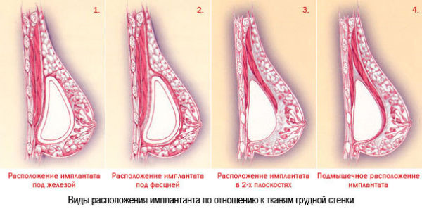 импланты в молочной железе