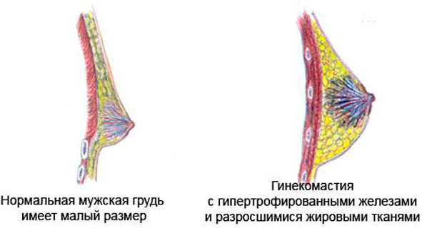 нормальная и гипертрофированная грудь