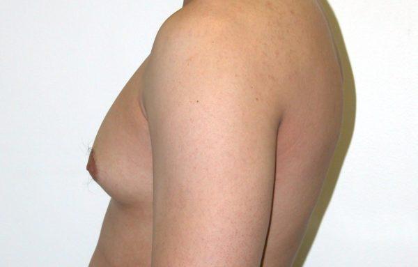 Узловая гинекомастия