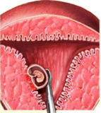 искусственное прерывание беременности как причина рака груди