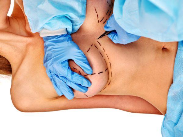 Augmentatsionnaya mammoplastika