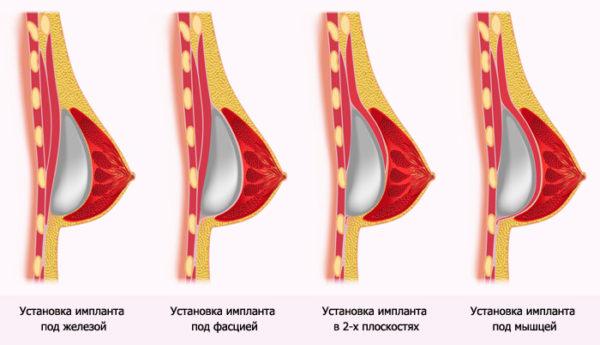implanti dlya podtyajki grudi