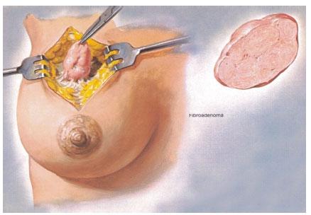 операция по удалению фиброаденомы