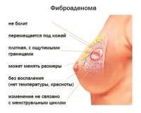 фиброаденома молочной железы признаки