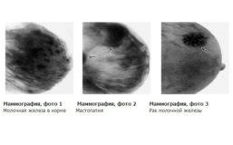маммография снимок