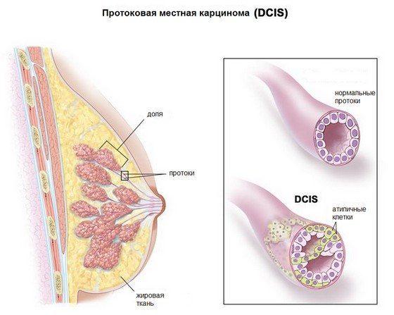 протоковая карцинома рак груди