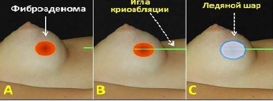 удаление фиброаденомы метод криоабляция