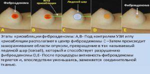 криоабляция фиброаденомы