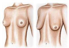 грудь теряет форму обвисает